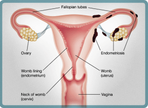endometriosis infertility